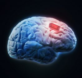 Human brain implant concept illustration