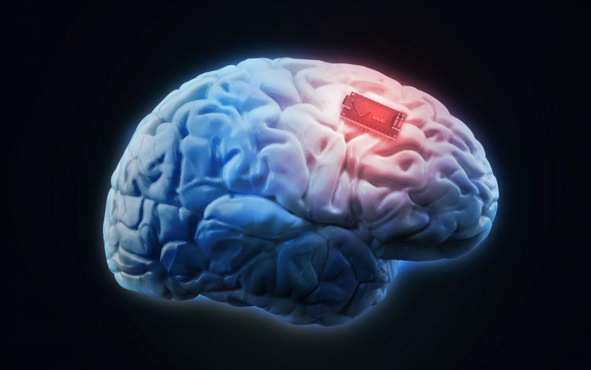 Human brain implant concept illustration