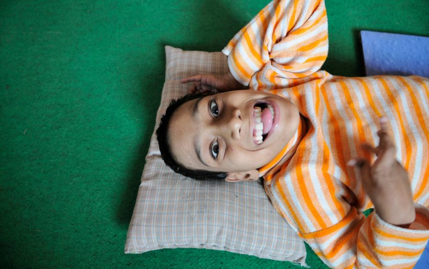 12 years old Suraj Raghuvansi with cerebral palsy smiling at Rehab Center in Bhopal.