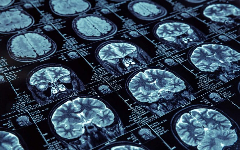 Closeup of X-ray photography of human brain